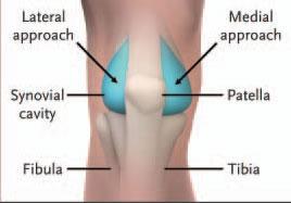 Knee arthrocentesis landmarks