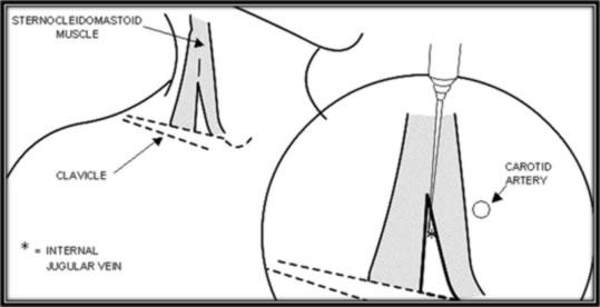 Procguide Internal Jugular Central Line